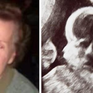 Mujer ve fantasma de su abuela en el ultrasonido de su bebé