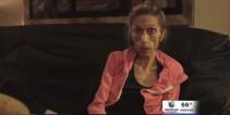 mujer-anorxica-busca-tratamiento-en-denver.jpg