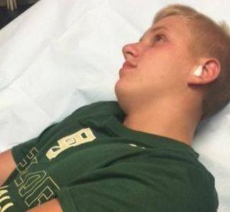 Gigantesco ciempiés vivía en la oreja de un adolescente