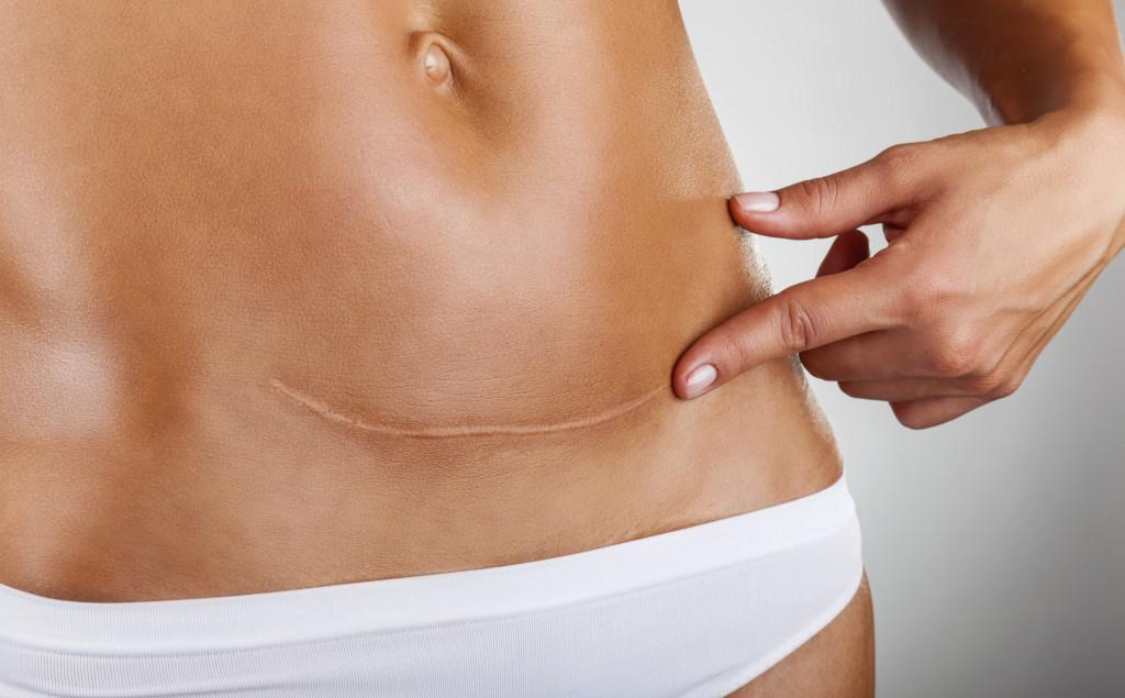 Cuidado con las cesáreas innecesarias