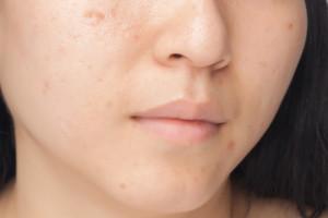 Evita las manchas en la cara durante el embarazo