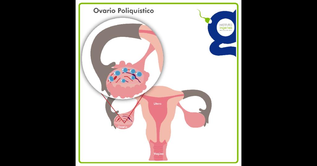 Síndrome de ovario poliquístico (SOP), ¿una causa de infertilidad?