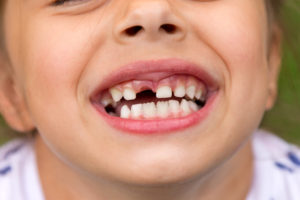 Esta es la razón por la que debes guardar los dientes de leche