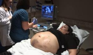 VIDEO: esperaba quintillizos y su vientre se llenó de moretones