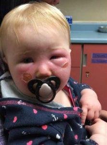 Bebé sufrió quemaduras de segundo grado a causa del protector solar