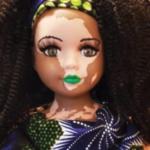 Artista crea muñecas con vitíligo para niños con la enfermedad