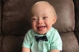 Bebé con síndrome de Down portavoz de Gerber por primera vez