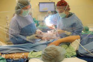 Las cortinas transparentes que dejan ver al bebé que nace por cesárea