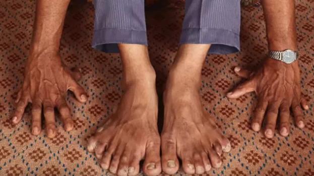 hombre con muchos dedos